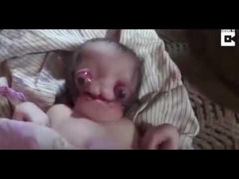 В Індії народилася дитина «з очима назовні»: місцеві вважають її прибульцем (відео 18+)