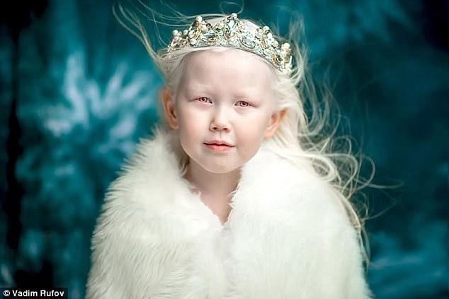 Белоснежка из Сибири: школьница с уникальной внешностью покорила мир