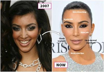 Ким Кардашян: как она выглядела до пластических операций