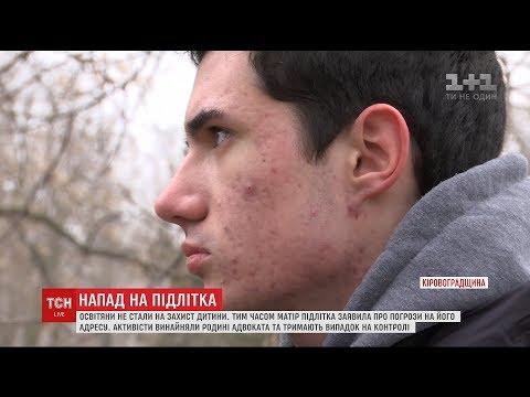 Полицейские жестоко избили школьника под Кропивницким. ВИДЕО