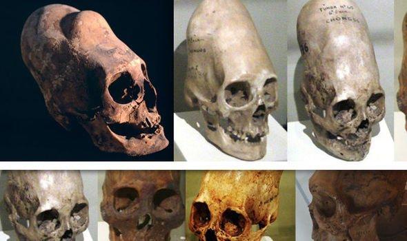 """Уникальный эксперимент раскрыл тайну перуанского """"черепа пришельца"""""""