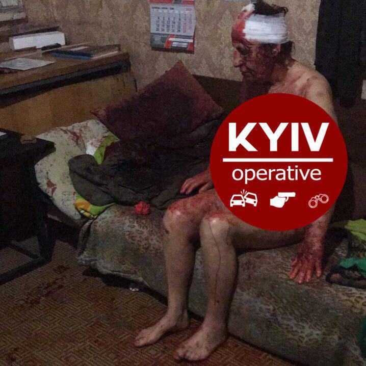 В Киеве нашли жестоко избитую голую женщину, которая молила о помощи: фото 18+