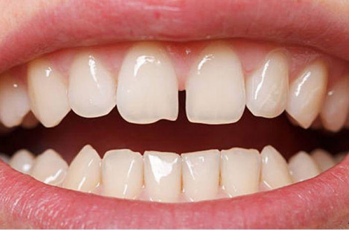 Люди со щербинкой между зубами- особенные! Вот почему