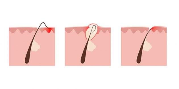 Как навсегда избавиться от вросших волос