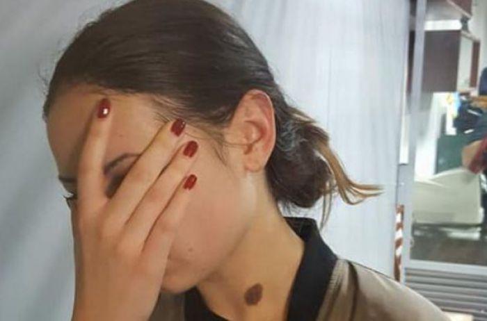 Это уже слишком: Зайцева шокировала изменением во внешности