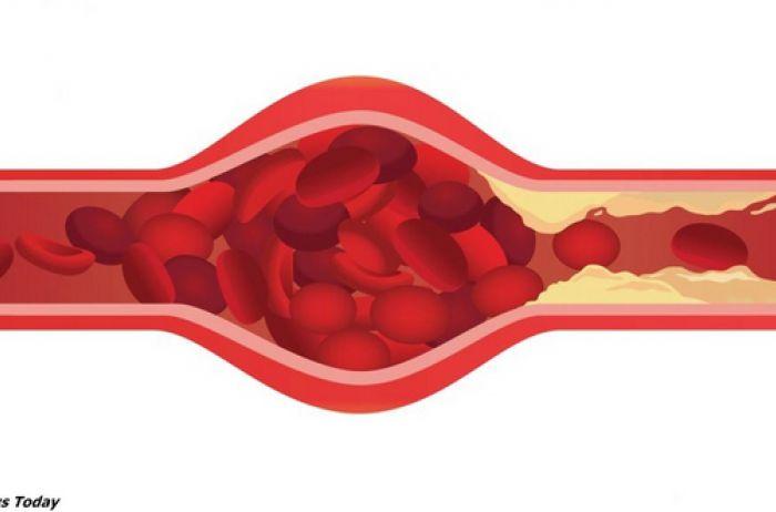 5 тревожных признаков, что ваши артерии уже забиты бляшками