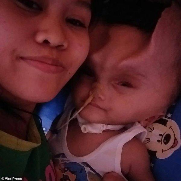 На голове двухлетнего малыша после операции появились «рога дьявола»: жуткие фото