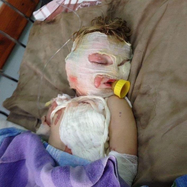 ЧП под Мелитополем. На 2-летнего ребенка упала кастрюля с кипятком. ФОТО