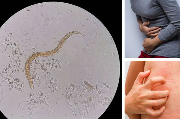 5 признаков, что в вашем теле могут жить паразиты