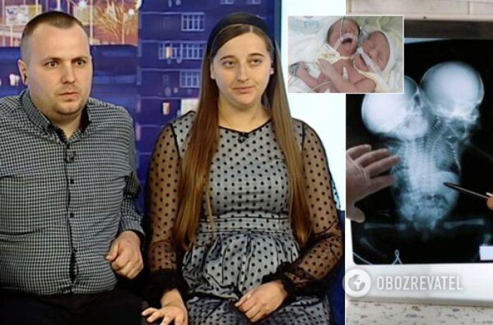 Родители сиамских близнецов из Черновцов пришли на ТВ и рассказали всю правду. ВИДЕО