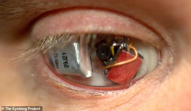 Время терминатора пришло: мужчине встроили камеру вместо глаза