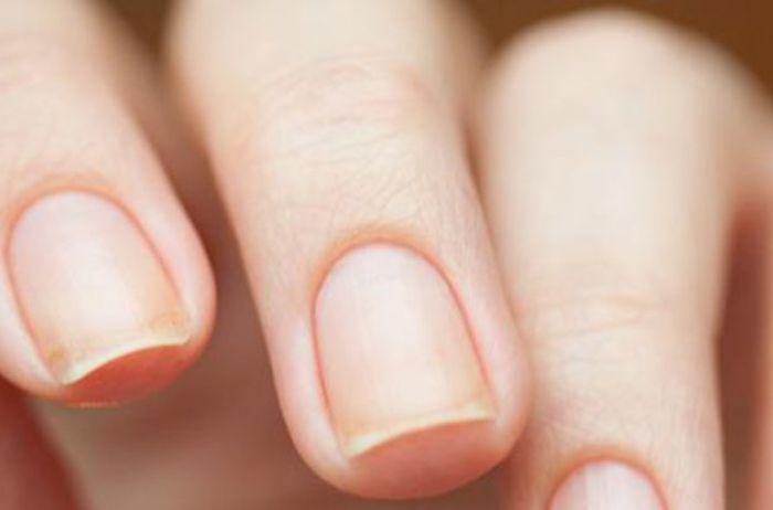 О каких заболеваниях расскажут ямочки на ногтях
