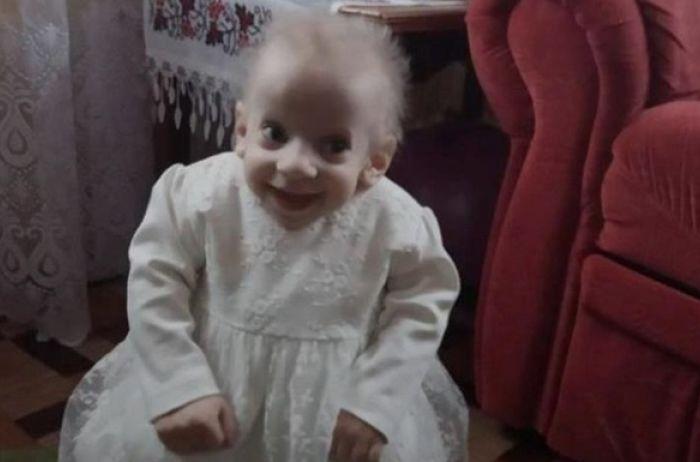 В Луцке скончался от старости 8-летний ребенок