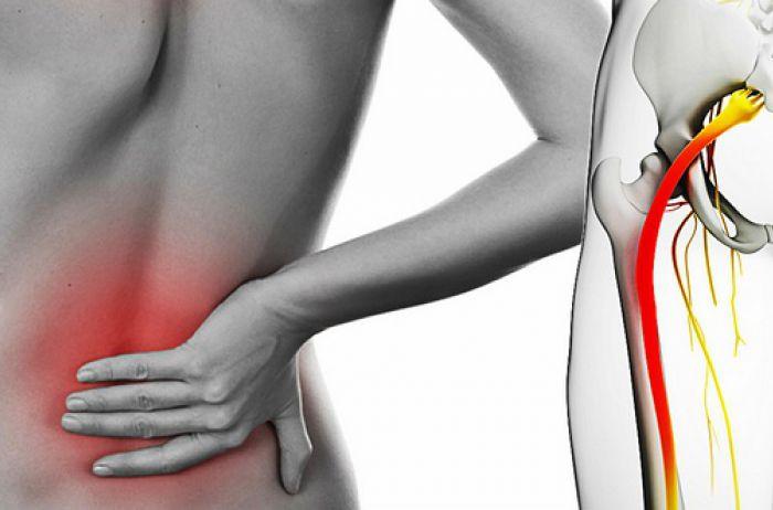 Всего 4-5 минут: лечим седалищный нерв и избавляемся от боли в пояснице. ВИДЕО