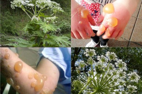 «Опаснее укуса гадюки»: ядовитое растение захватывает Украину. ВИДЕО