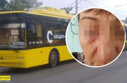 В Сумах пассажир из-за маски изувечила кондуктора: подробности происшествия