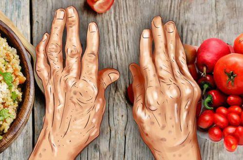 Артрит отступит: что необходимо добавит в свой рацион питания