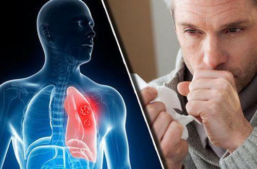 Как вылечить кашель любой степени запущенности: 8 шагов