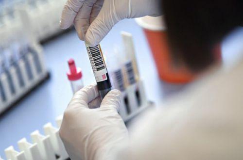 Все здоровы: в ООН заметили отсутствие статистики о COVID-зараженных в СИЗО «ЛДНР» и в Крыму