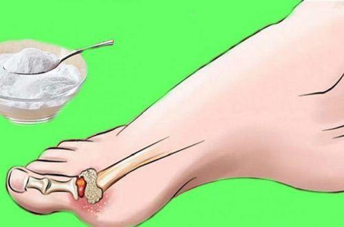 Подагра или артроз: чаще всего опухшие пальцы - симптом серьезного заболевания